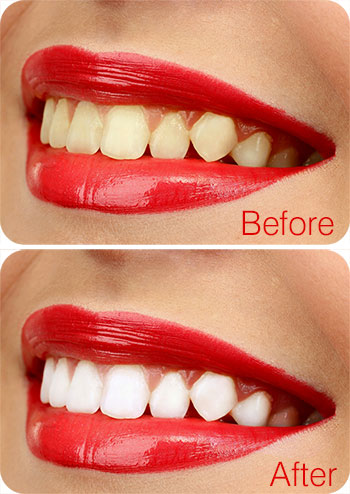 Teeth Whitening in Delhi - Before and After